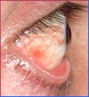 The eye has recovered from cataract symptoms- SYMMETRYBODY