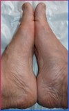 The recovery percentage of hallux valgus is 98,5%. - SYMMETRYBODY