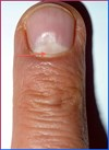 Asymmetrybody causes dent in the nails-SYMMETRYBODY